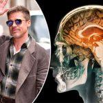 Che cos'è la Prosopagnosia? La storia di Brad Pitt